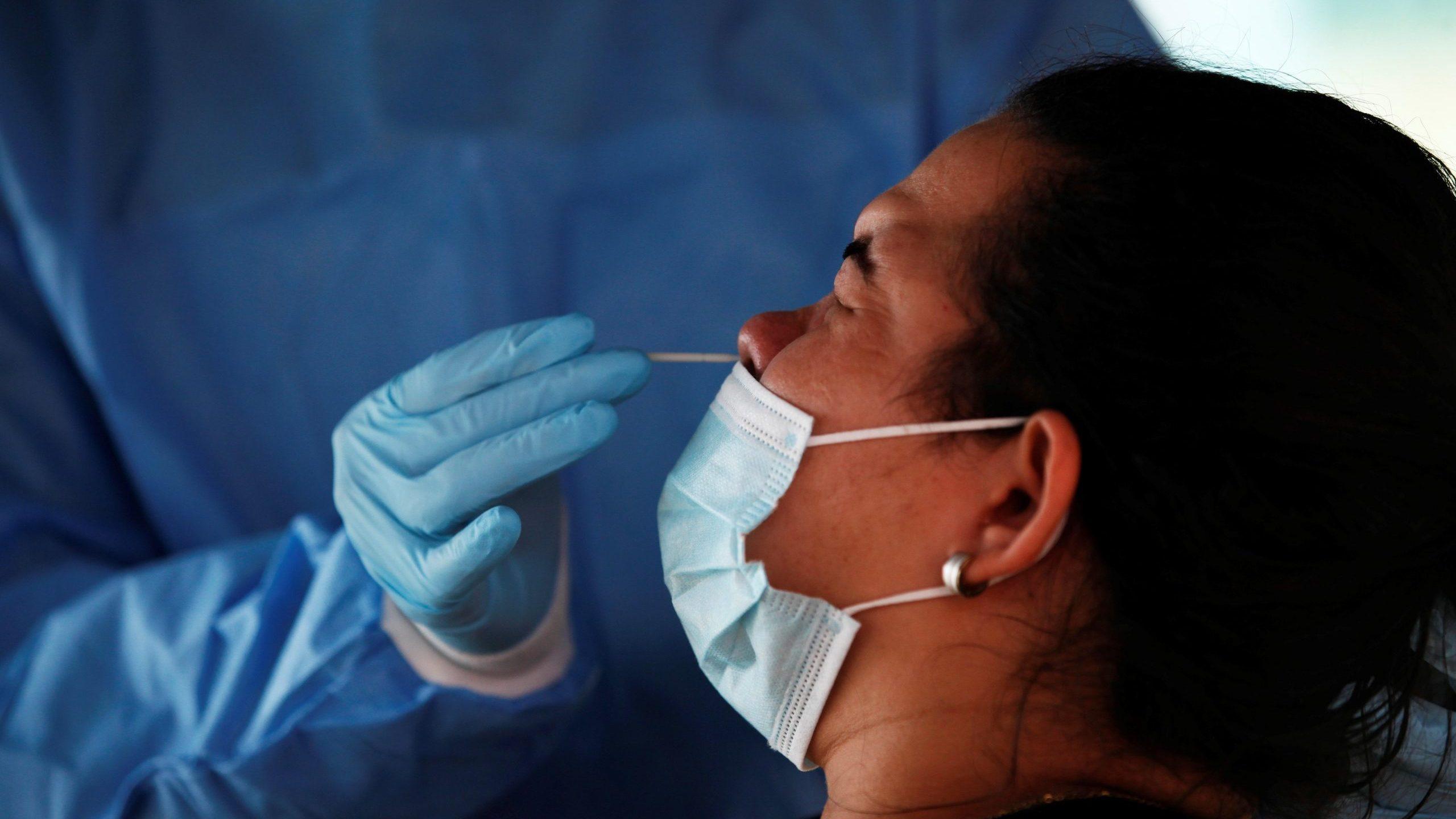 Más de 50% de pacientes COVID pueden tener síntomas tras recibir alta: estudio