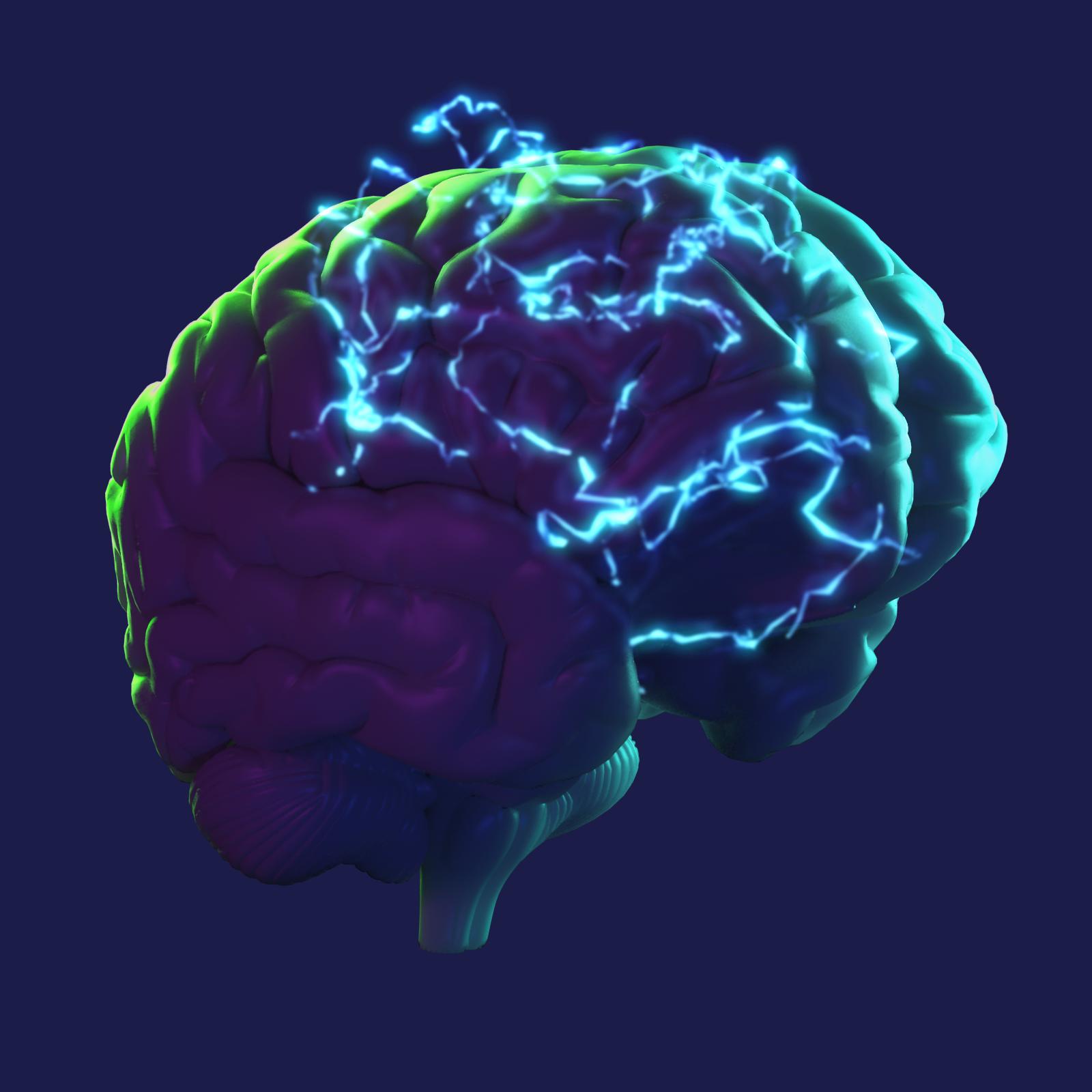 Robots y cerebros: así tratan la epilepsia en Cleveland Clinic