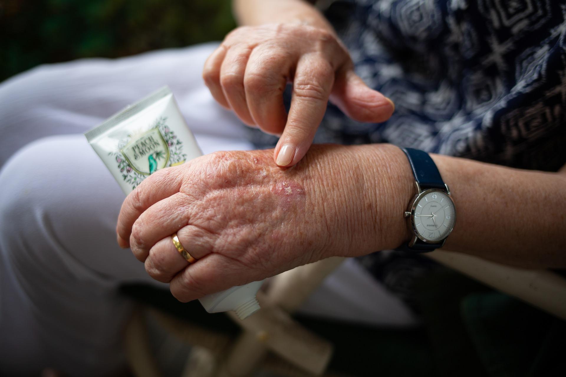 Medicamento contra la artritis ayuda a pacientes críticos de Covid-19: estudio