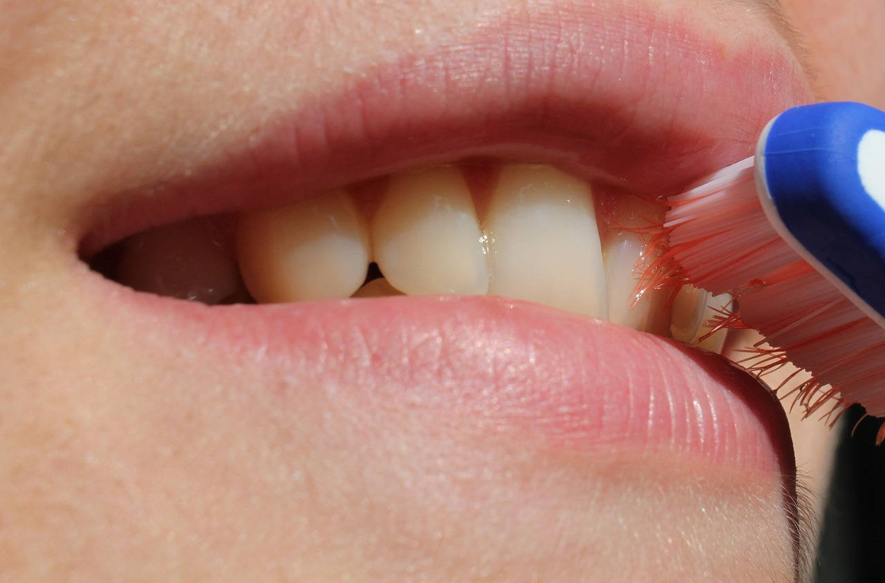 Caída de dientes, nuevo efecto secundario del Covid-19