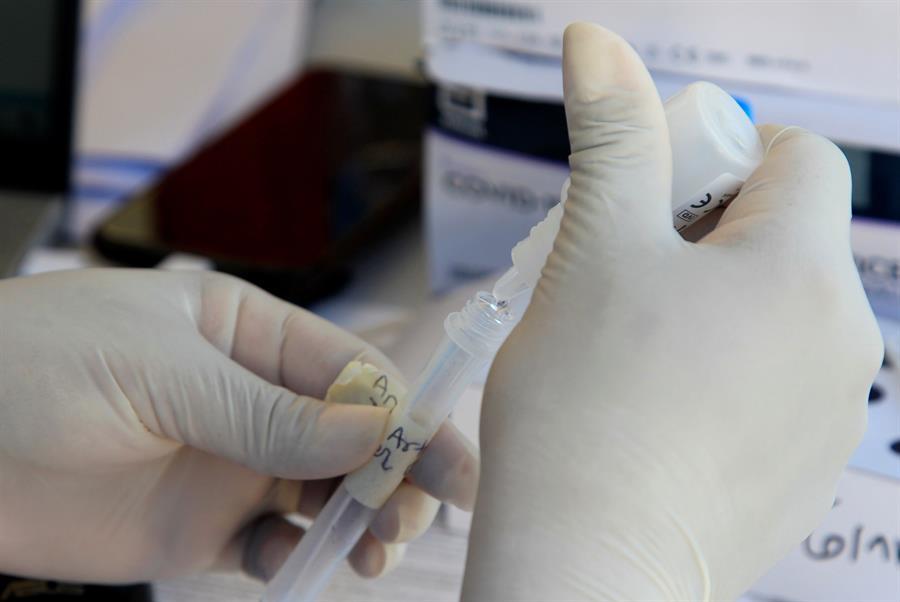 Pruebas de COVID-19 son clave para una mayor eficacia en la vacunación
