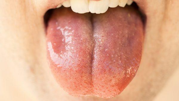 El coronavirus también puede infectar las células de la boca