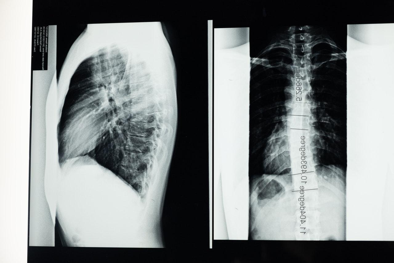 Un tercio de pacientes covid muestran cambio pulmonar un año después